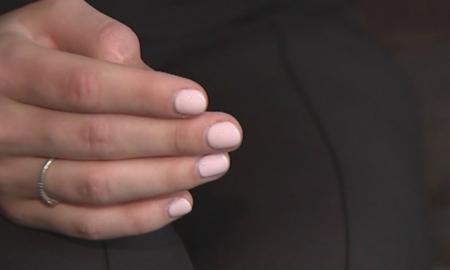 melanoma a las uñas